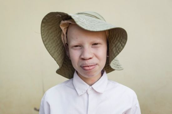 Jef Boes and ILA Foundation visit albino children in Tanzania